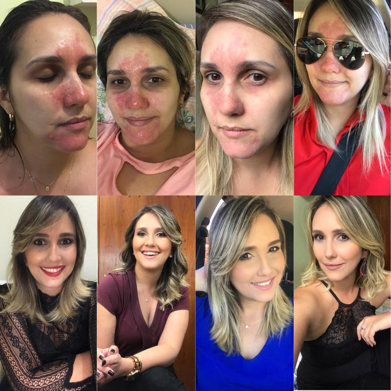 Fernanda Tavares escreve sobre Rosácea